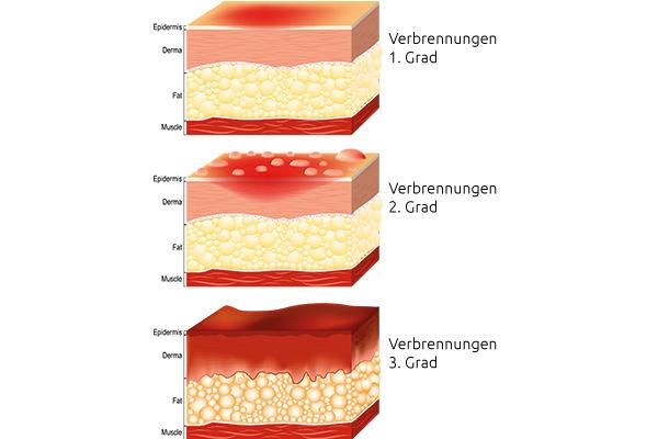 Verbrennungen der Haut durch Sonenbrand